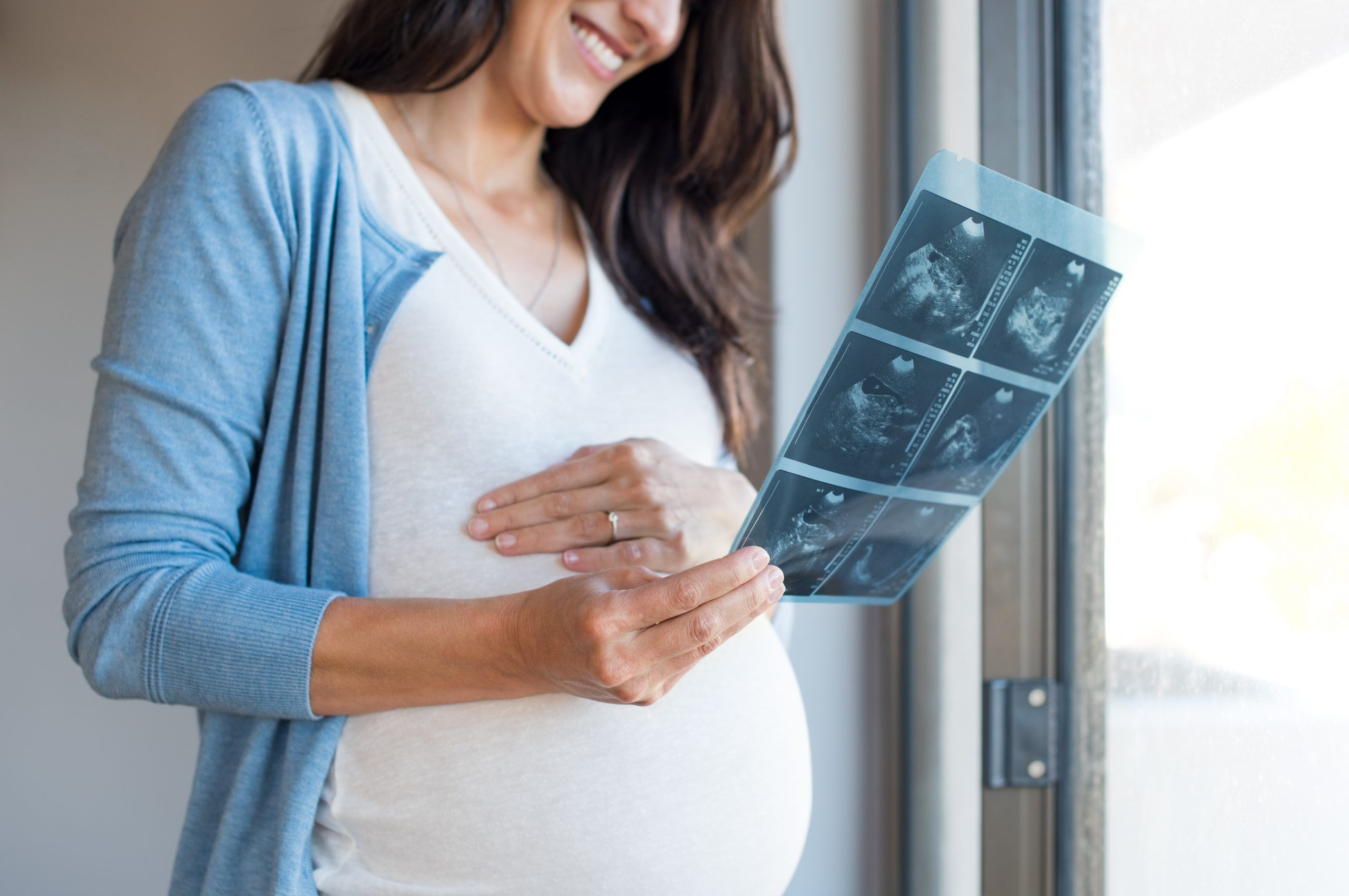Ultrasonido prenatal
