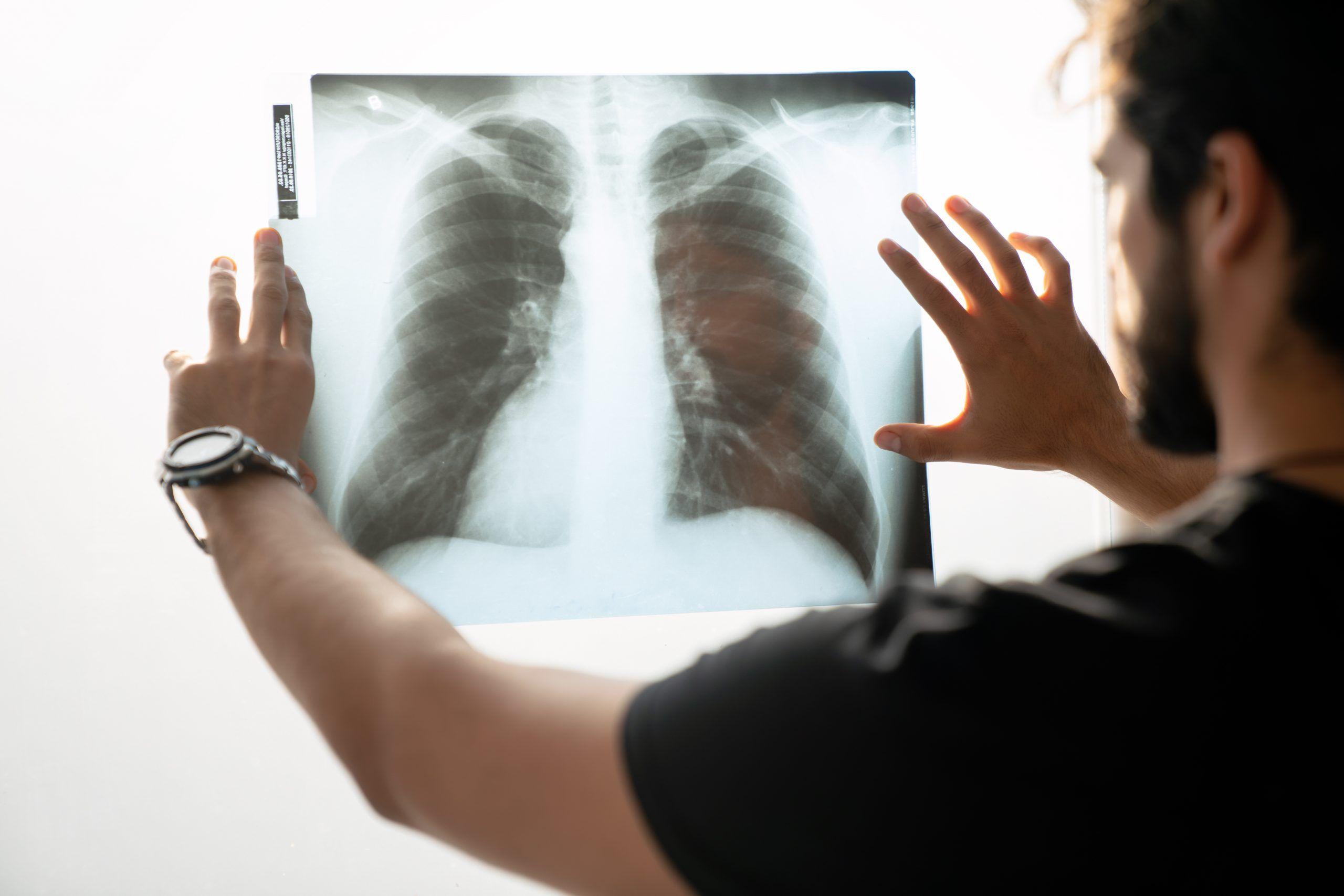 Detección de fibrosis quística